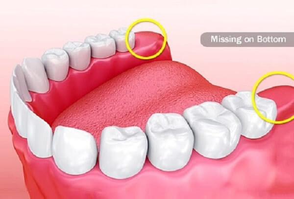 How long will it take to recover from wisdom tooth removal