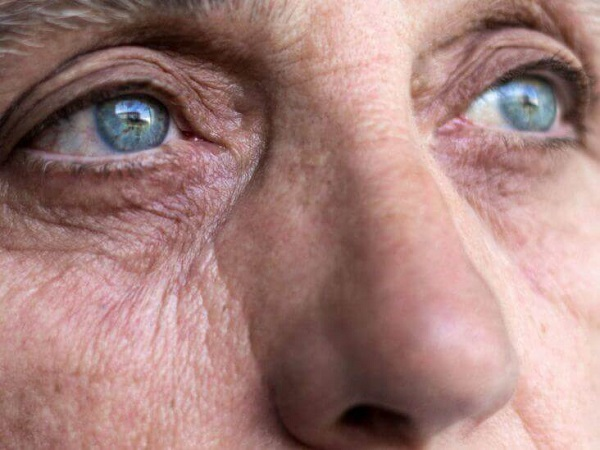 Vitamin A deficiency can cause eye problems