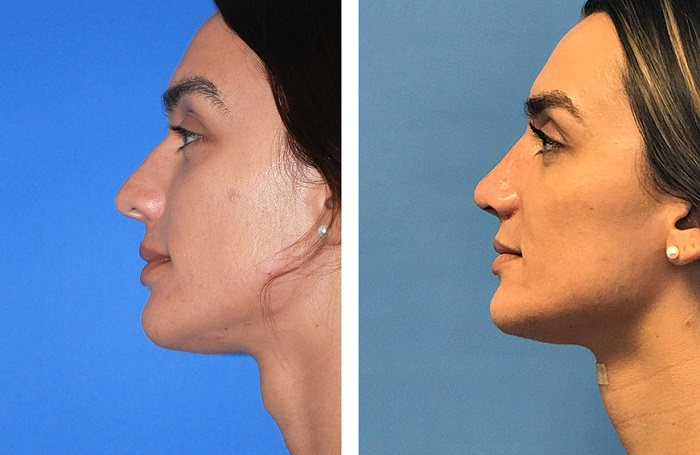 Swelling Normal post facial Feminization surgery