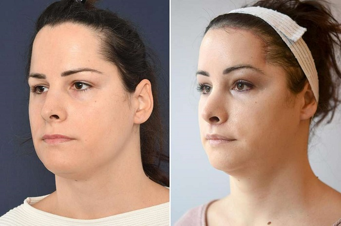Swelling Normal post-facial Feminization surgery