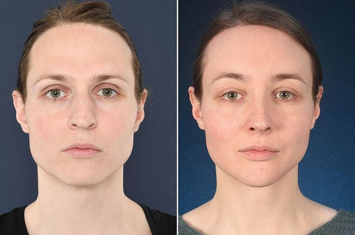 What Results you should expect after Facial Feminization Surgery