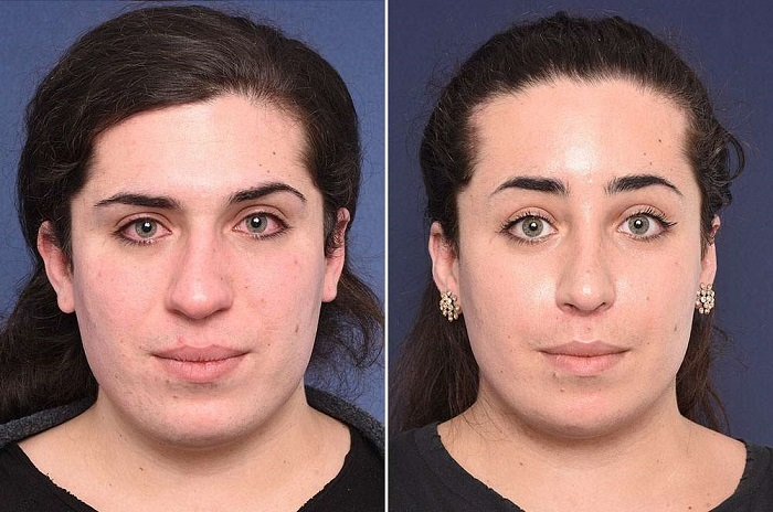 What is Facial Feminization Surgery
